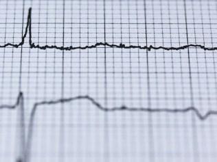 blurred pulse chart